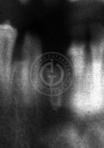 Socket sclerosis