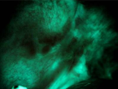 Изглед на лигавицата през VELscope